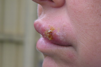 Curare herpes